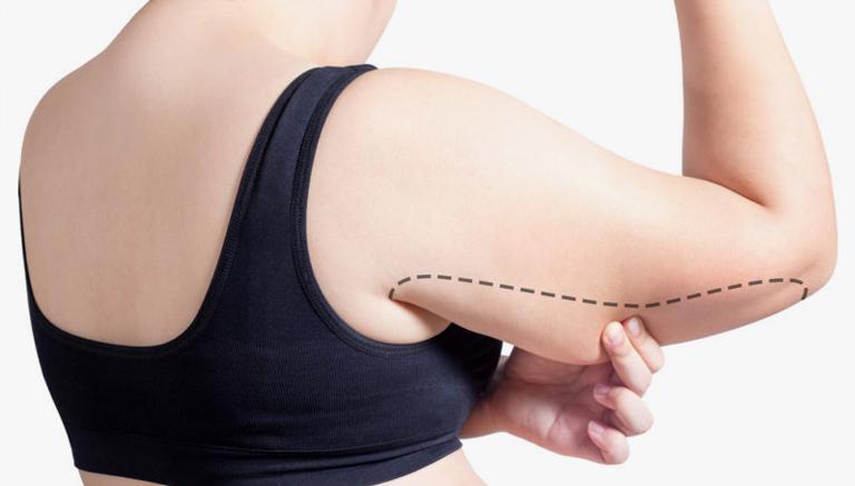 Arm Lift Beverly Hills Plastic Surgery