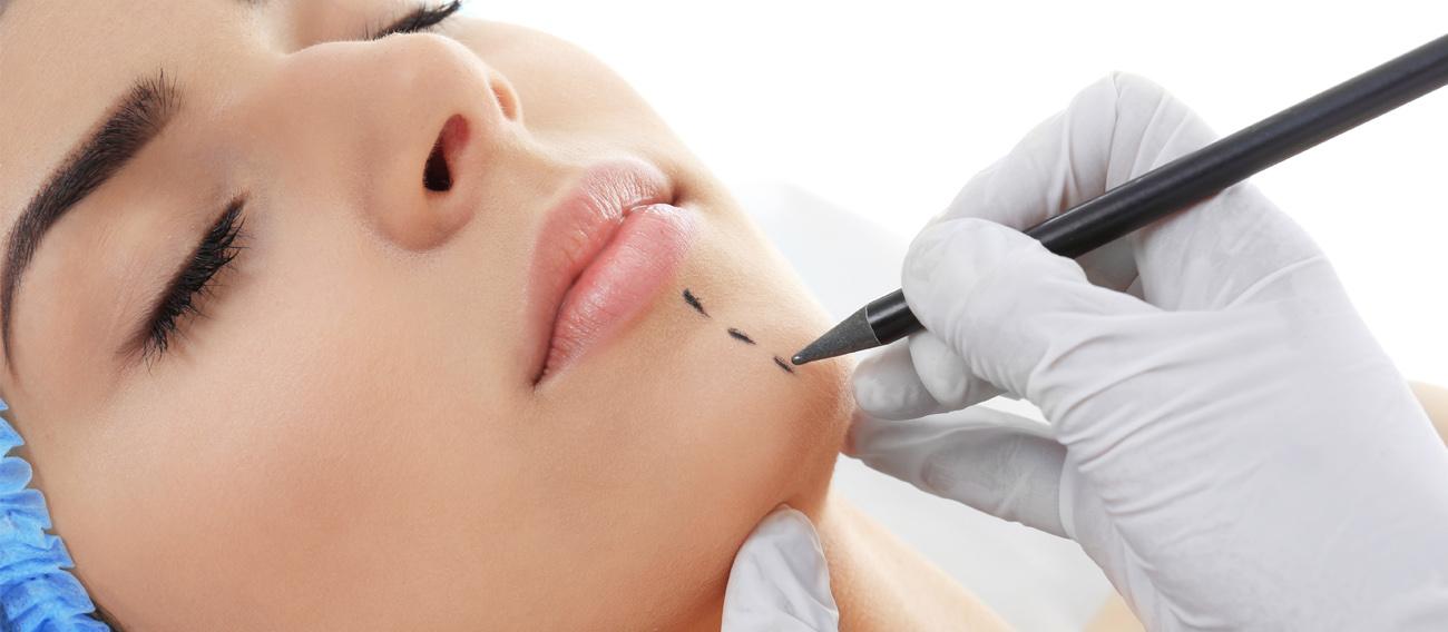 chin implant beverly hills-california plastic surgeon