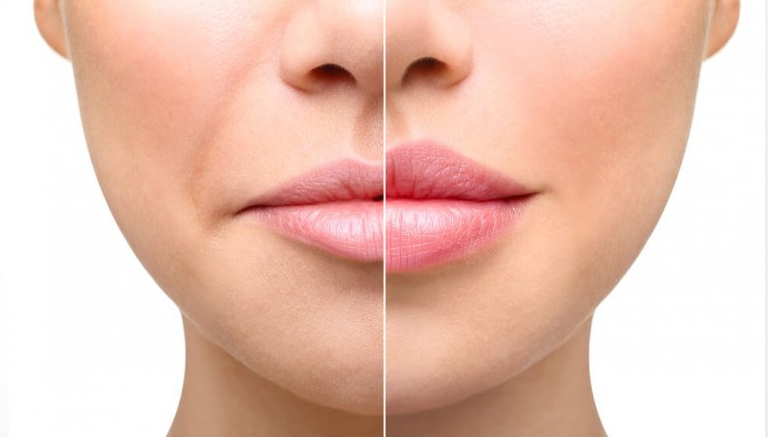 Lip Contouring Injections Beverly Hills California