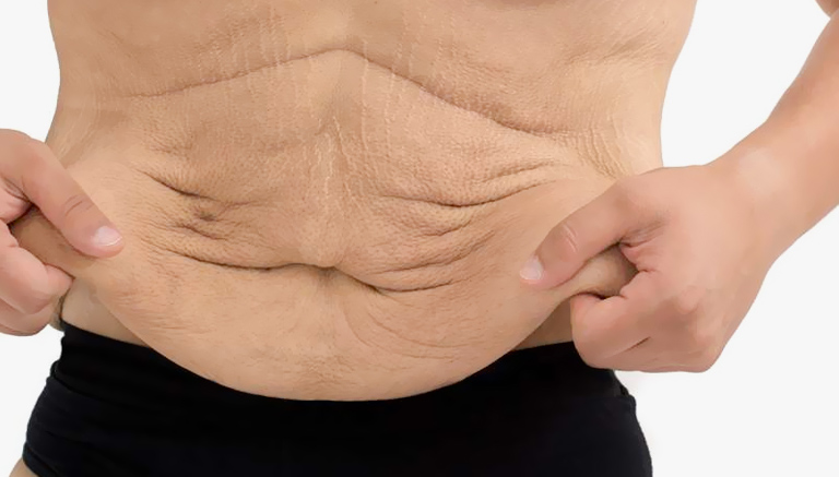 Man With Loose Skin Weight Loss Surgery Beverly Hills
