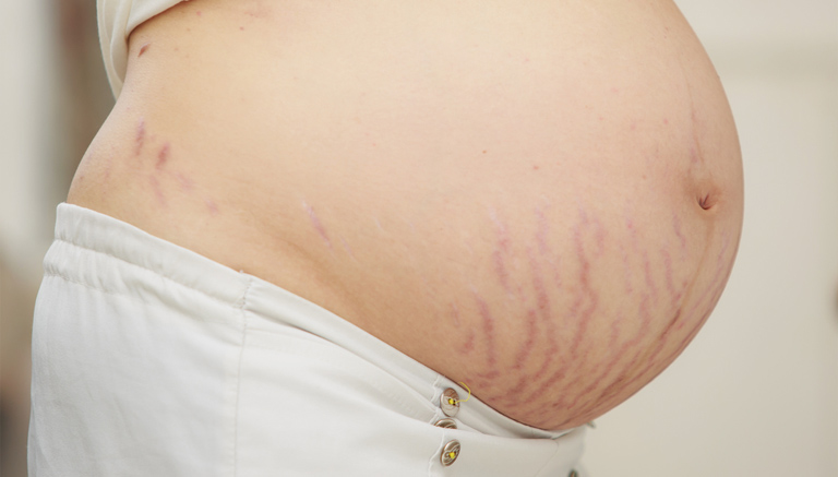Pregnancy Scars And Stretching