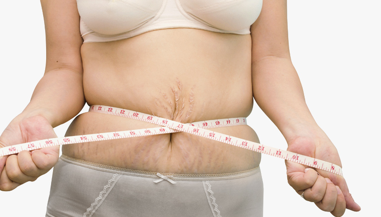 Woman With Loose Skin Weight Loss Surgery Beverly Hills
