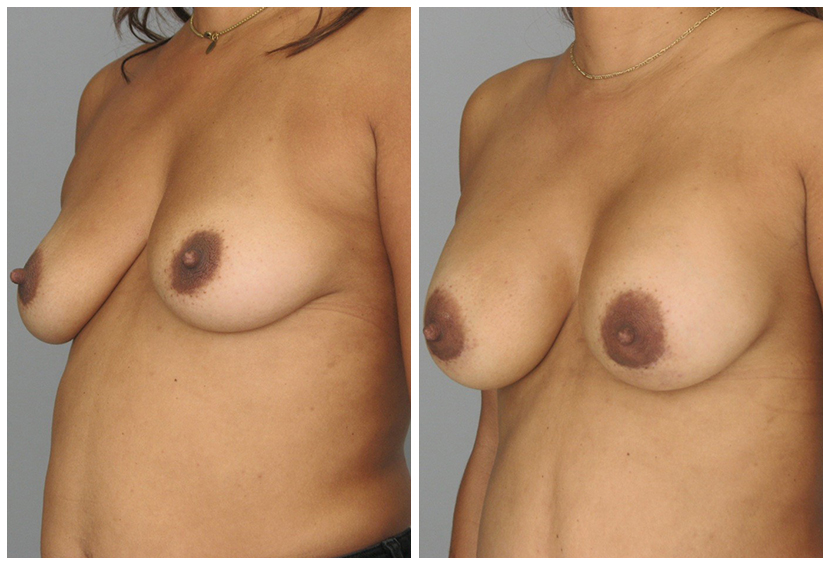 Breast Implants Before After al