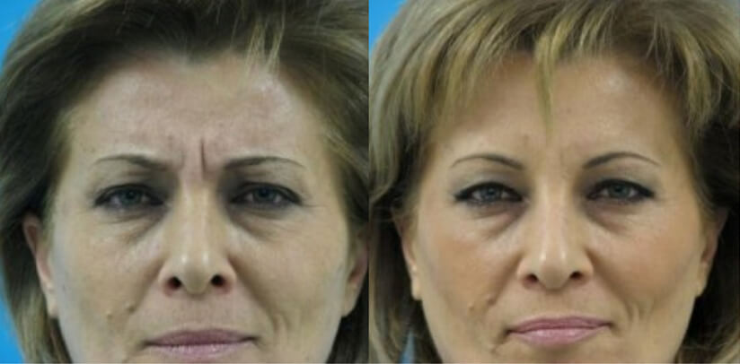 Botox Cosmetic Lift Before After