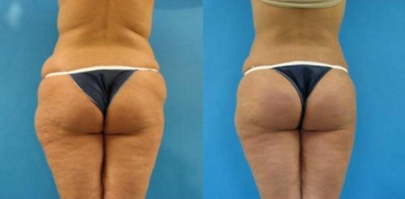 Brazilian Butt Lift Before After K.d