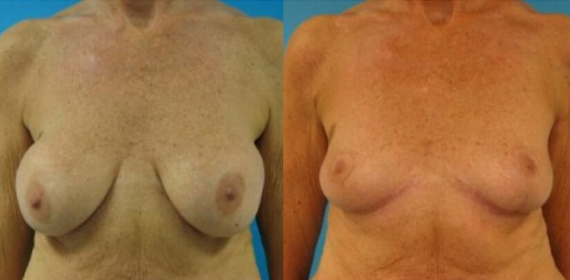 Breast Implant Removal Surgery Before After E.w