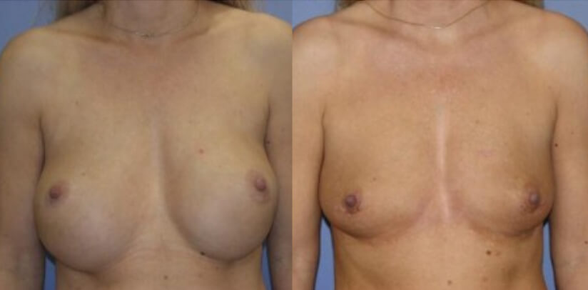 Breast Implant Removal Surgery Before After F.e