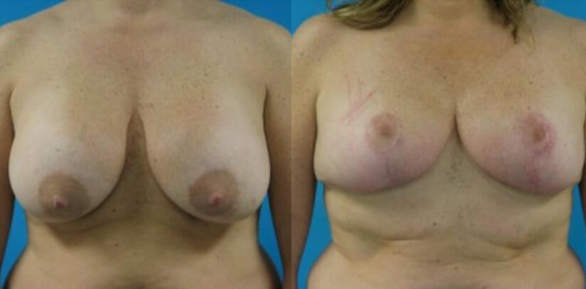 Breast Implant Removal Surgery Before After H.j
