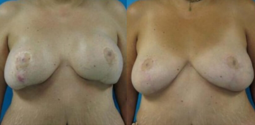 Breast Implant Removal Surgery Before After L.d