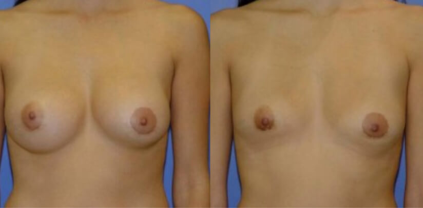 Breast Implant Removal Surgery Before After M.j