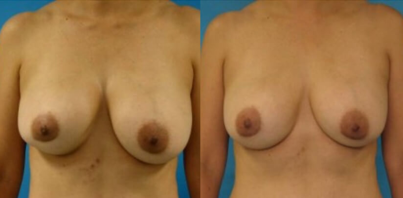 Breast Implant Removal Surgery Before After R.s