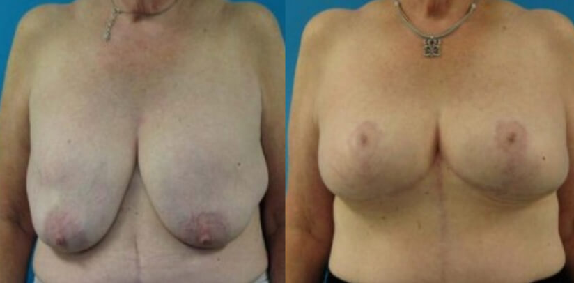 Breast Implant Removal Surgery Before After T.f