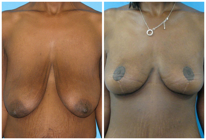 Breast Lift Surgery Am1 Before After