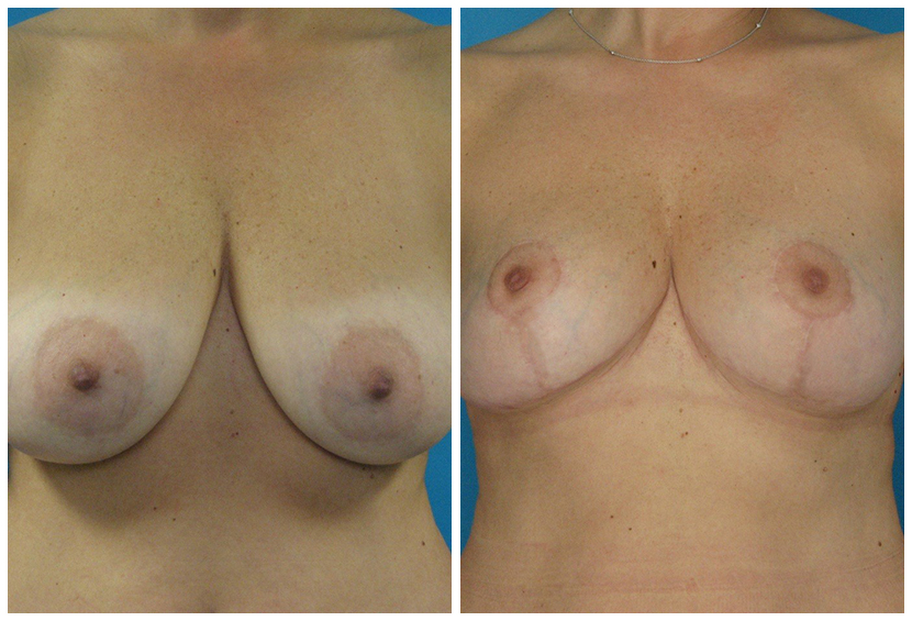 Breast Lift Surgery Der1 Before After