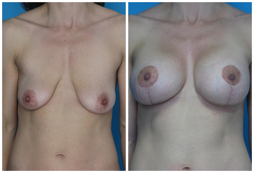 Breast Lift Surgery Er1 Before After