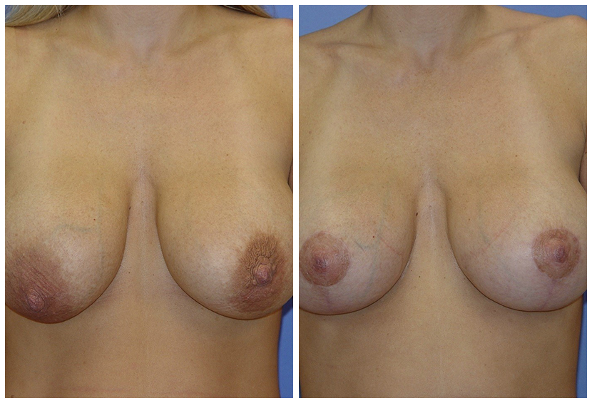 Breast Lift Surgery G1 Before After