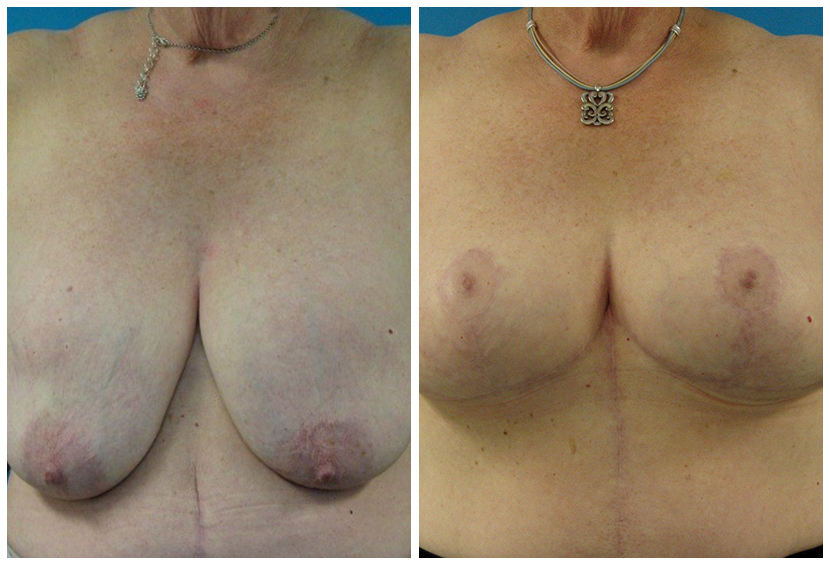 Breast Lift Surgery Gat1 Before After