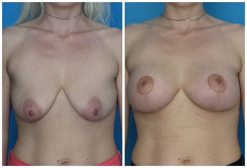 Breast Lift Surgery Ch1 Before After