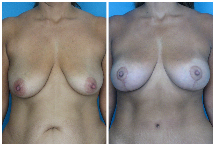 Breast Lift Surgery Fal1 Before After