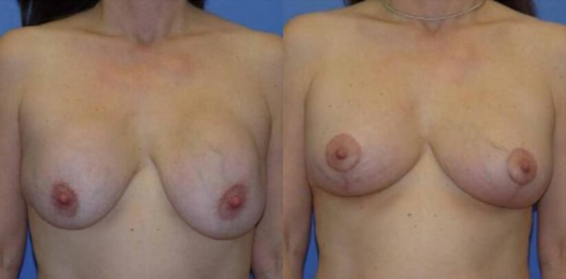 Breast Revision Surgery Before After G.d