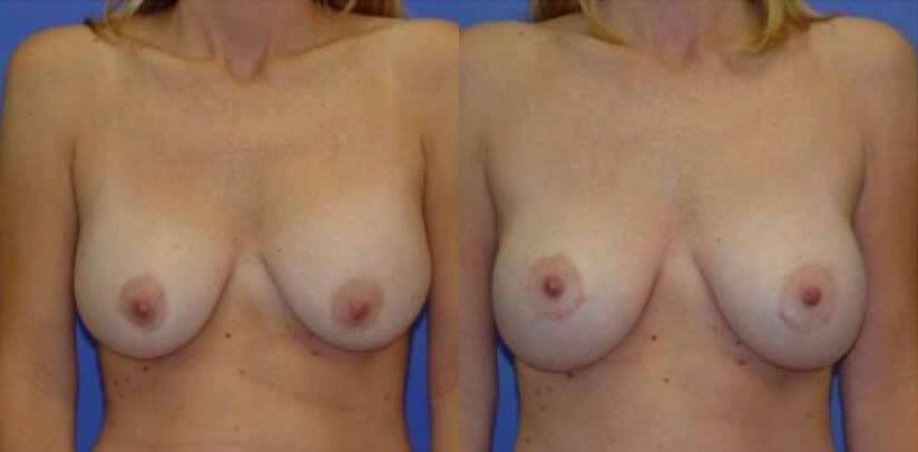 Breast Revision Surgery Before After G.l