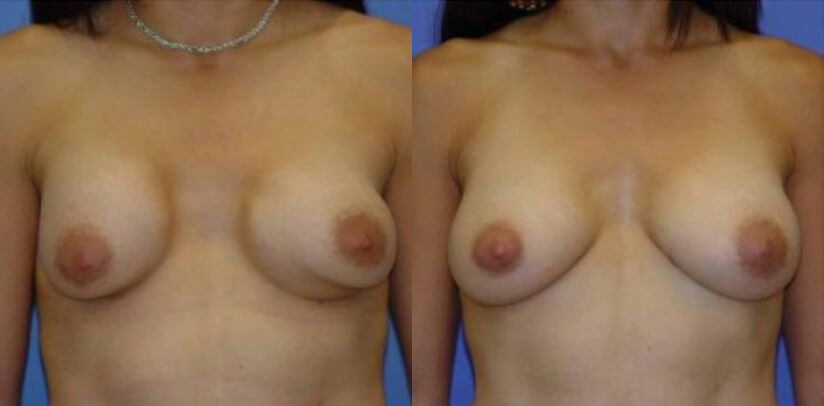 Breast Revision Surgery Before After H.c