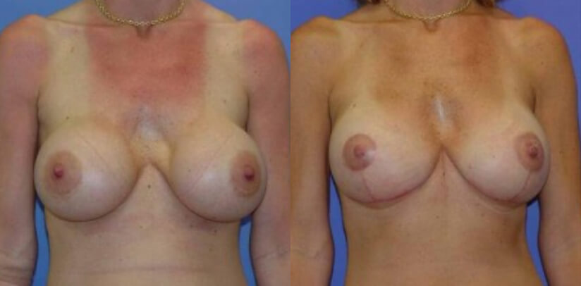 Breast Revision Surgery Before After K.d