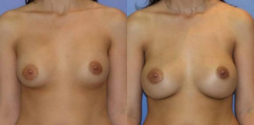 Breast Revision Surgery Before After L.b