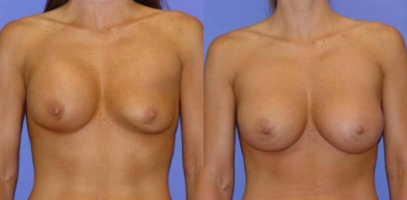 Breast Revision Surgery Before After M.f