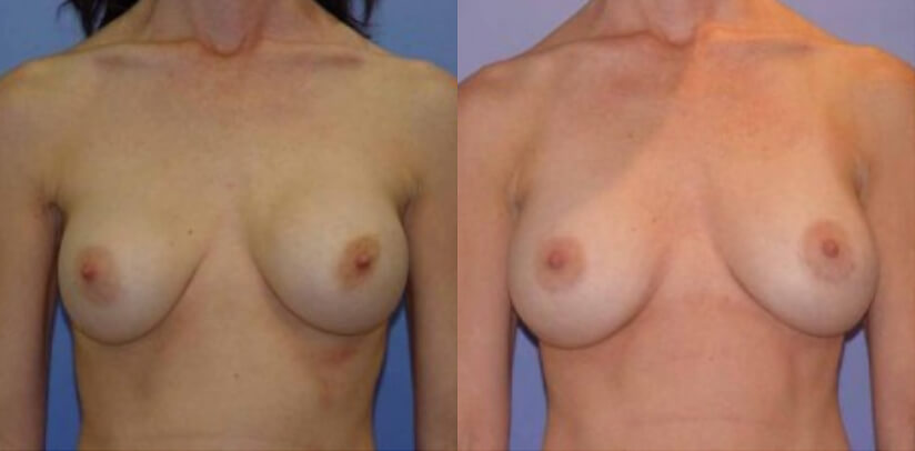 Breast Revision Surgery Before After R.d