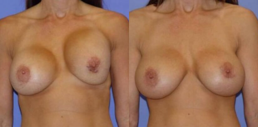 Breast Revision Surgery Before After Y.s