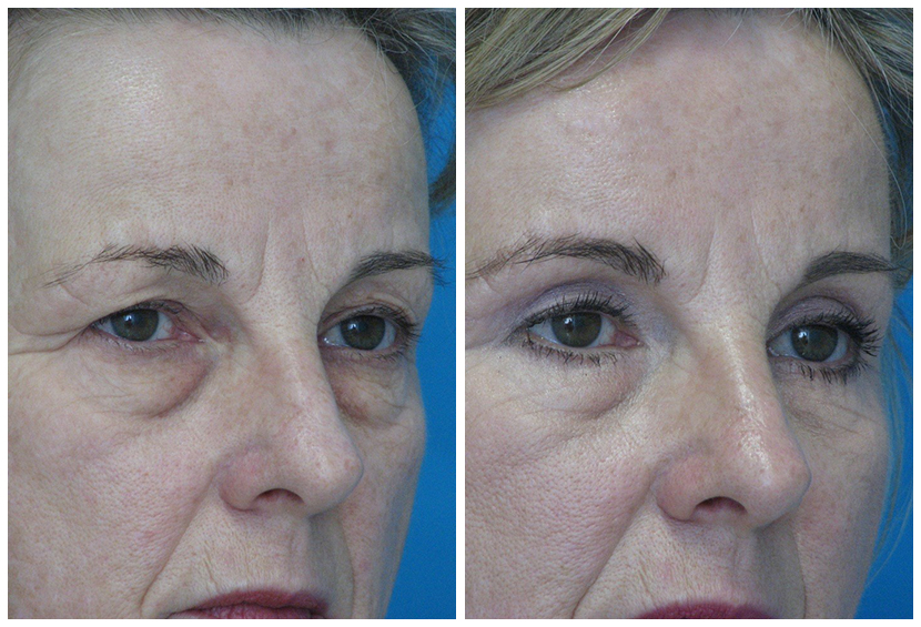 Brow Lift Surgery Before After B.l2