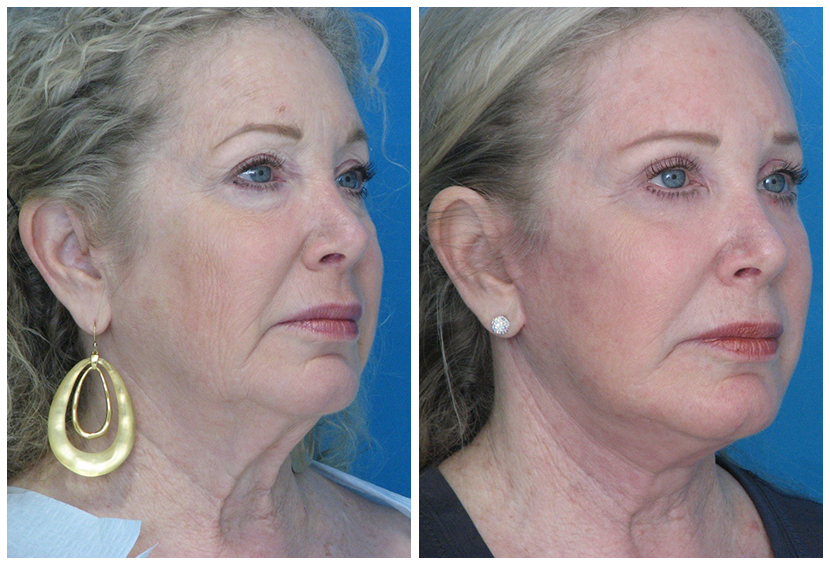 Brow Lift Surgery Before After B.r2