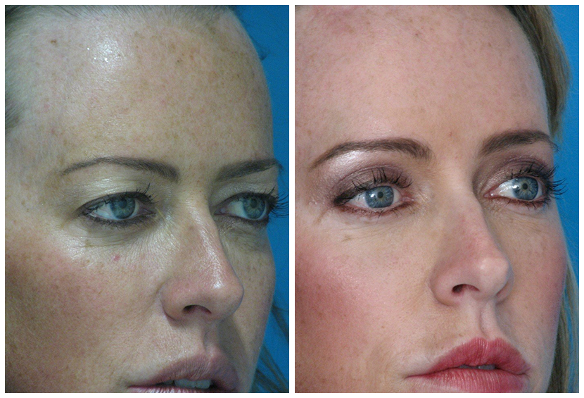 Brow Lift Surgery Before After B.u2