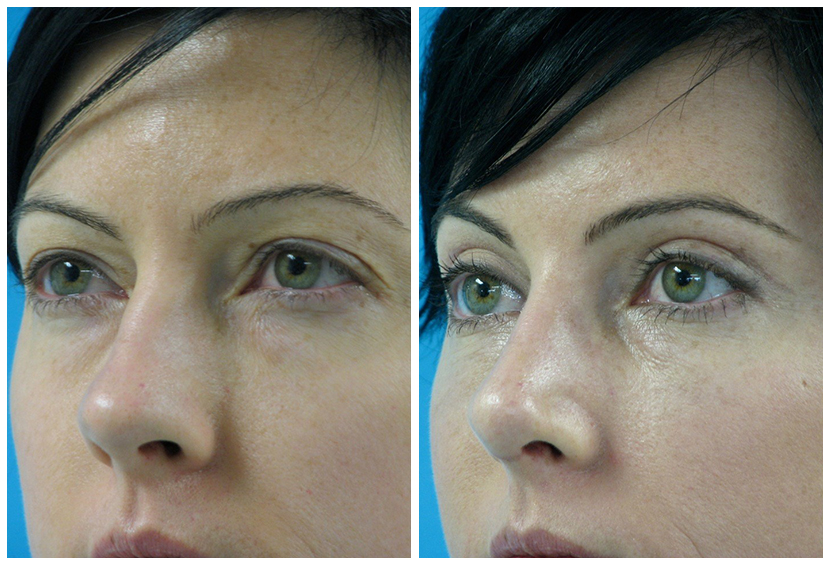 Brow Lift Surgery Before After C.o2