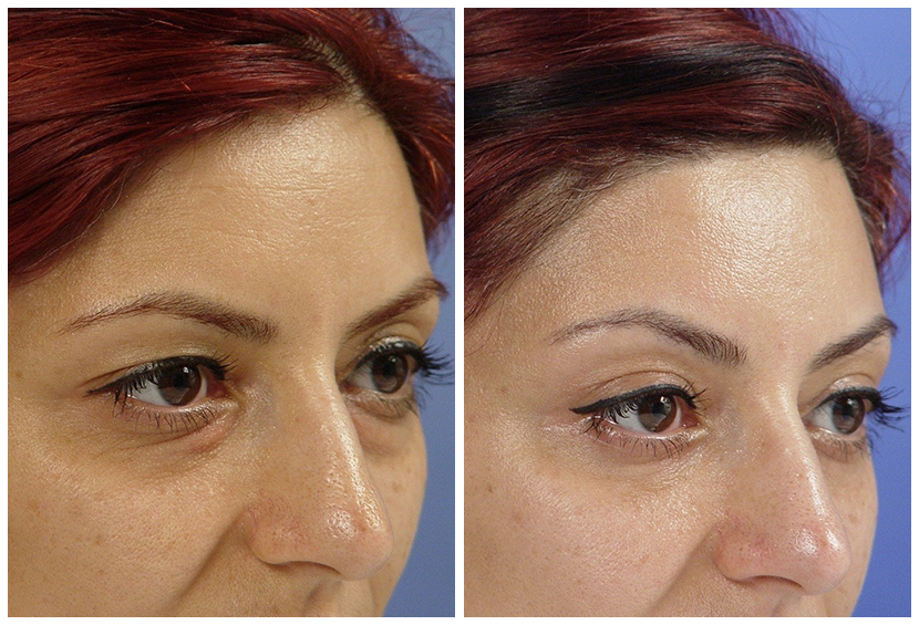 Brow Lift Surgery Before After K.a2