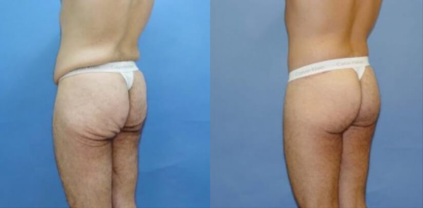Buttock Lift Before After E.S