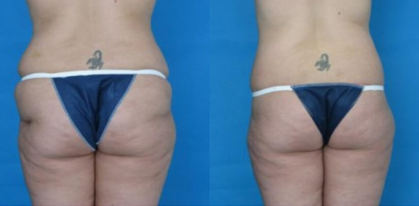Buttock Lift Before After F.d