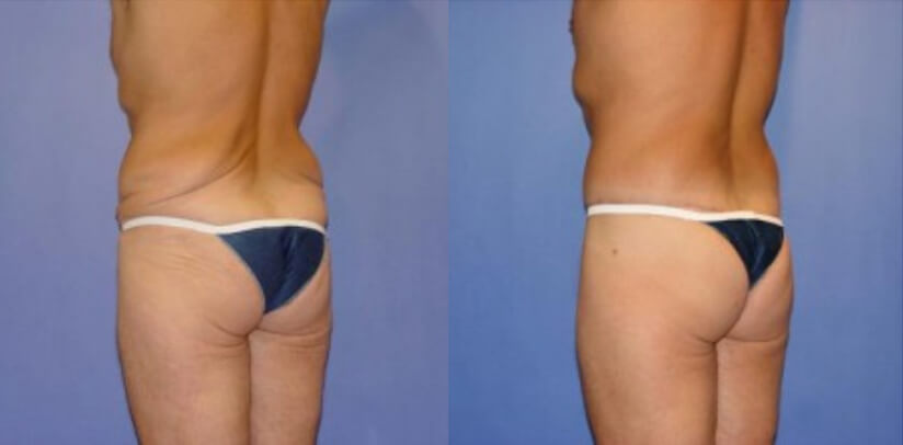 Buttock Lift Before After G.r