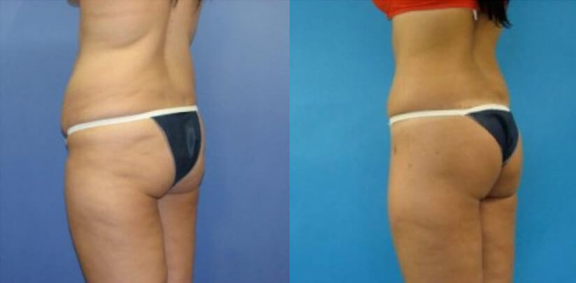 Buttock Lift Before After L.s