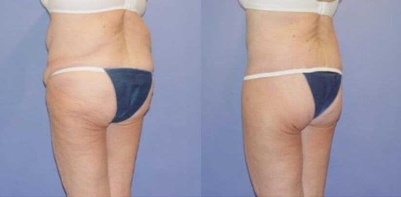 Buttock Lift Before After P.d