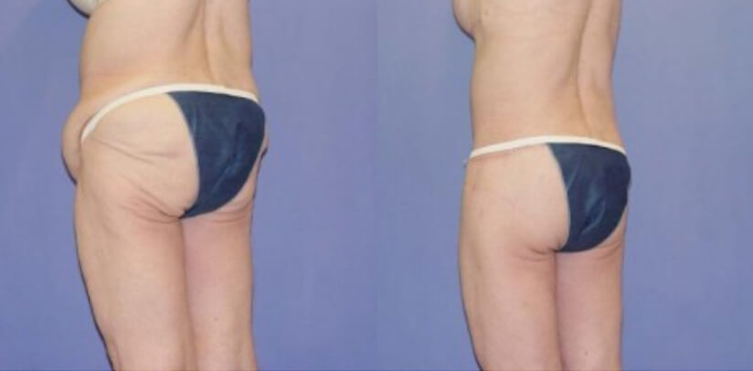 Buttock Lift Before After S.h