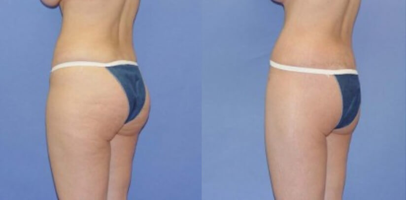 Buttock Lift Before After T.p