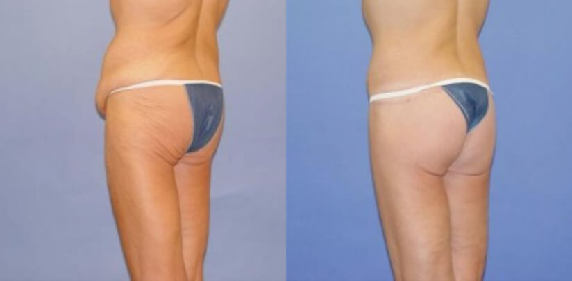 Buttock Lift Before After U.d