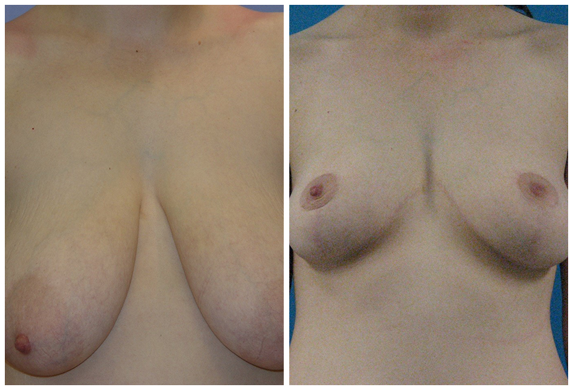 Breast Reduction Before After D.A