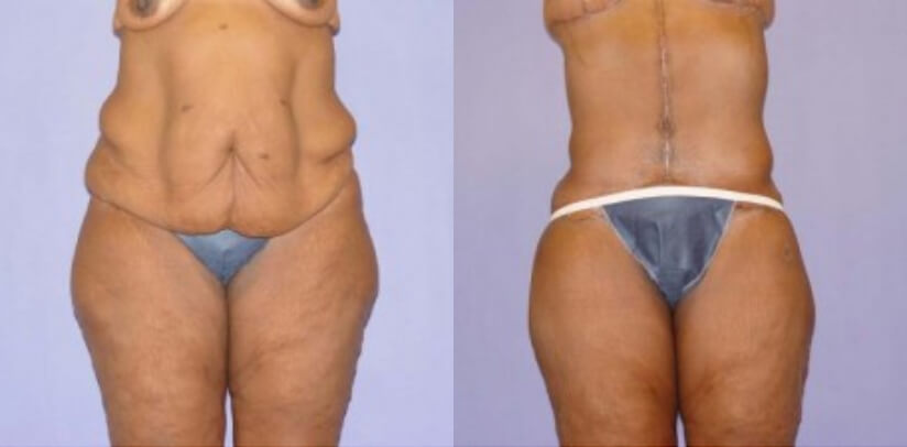 Extreme Weight Loss Surgery Before After E.f