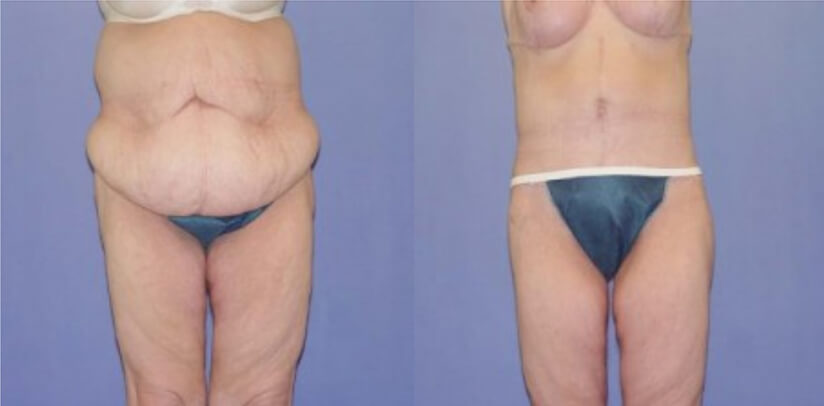 Extreme Weight Loss Surgery Before After N.a