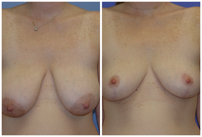 Breast Reduction Before After F.E.