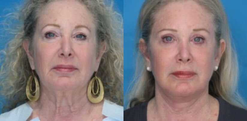Face Lift Before After F.h