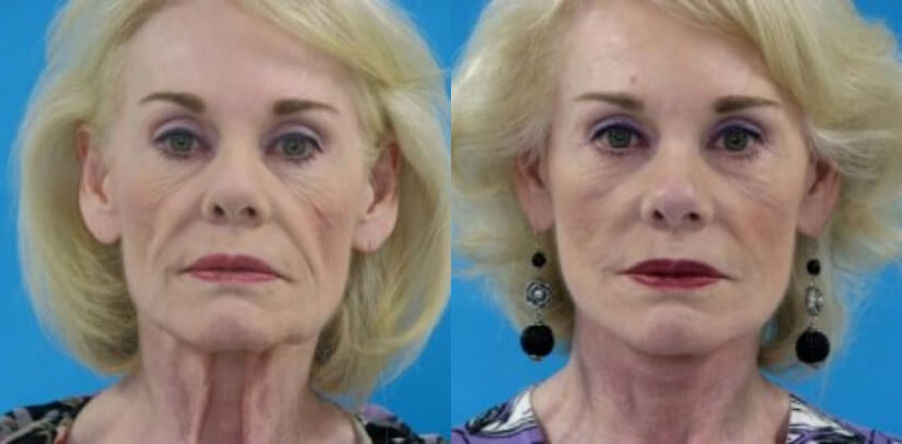 Face Lift Before After H.g